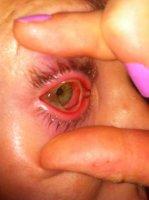 Infektoitunut silmä