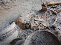 5000 vuotta vanha silmäproteesi